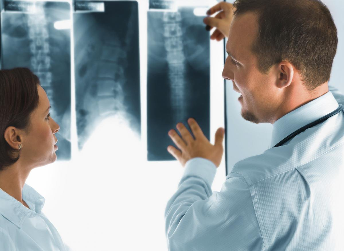 rentgen na domu